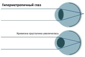 Гиперметропия. Рисунок 2