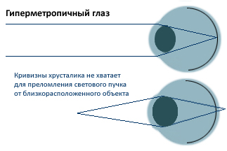 Гиперметропия. Рисунок 3